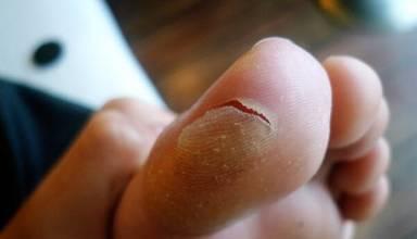 foot Blister,