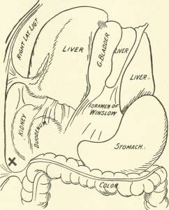 Gallstone Surgery image