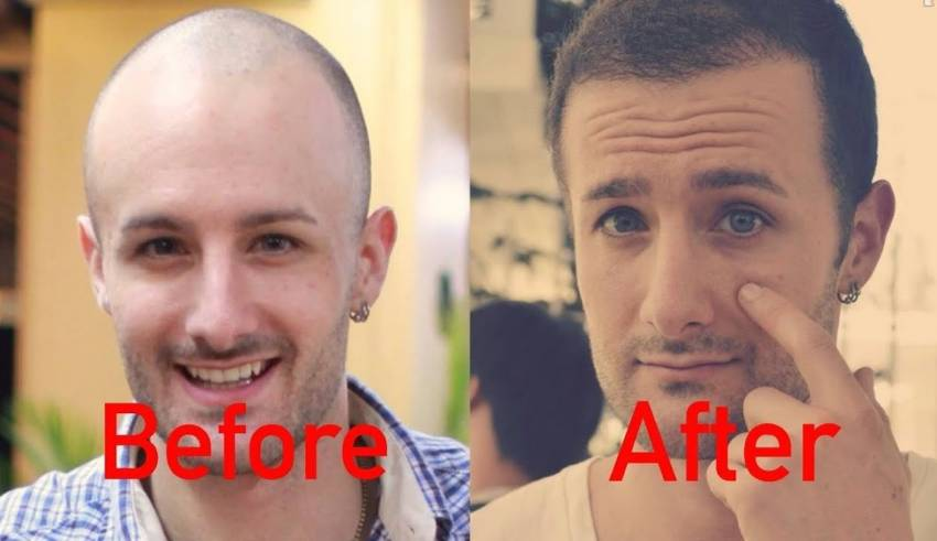 FUT and FUE Learn about the new hair restoration procedures