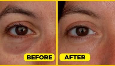 How to Minimise Puffy Eyes