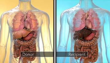Facts about Liver Transplant Surgery