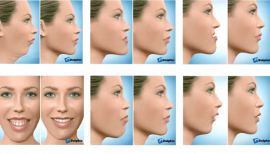 What to Expect From Corrective Jaw Surgery