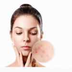 Acne- The Reasons and Remedies of it