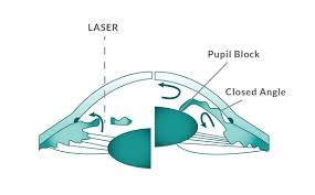 Definitive Guide To Glaucoma