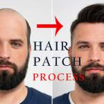 Hair Patches
