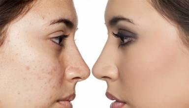 Using CBD for Acne