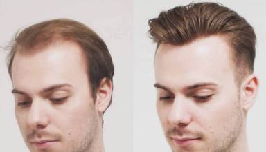 Best Hair loss solutions