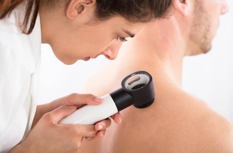 Why doctors do Skin Checks Using Digital Imaging