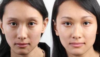 Botox Brow Lift Cost