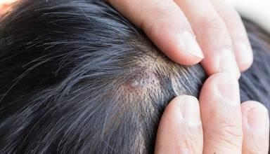 Understanding Scalp Acne in Detail